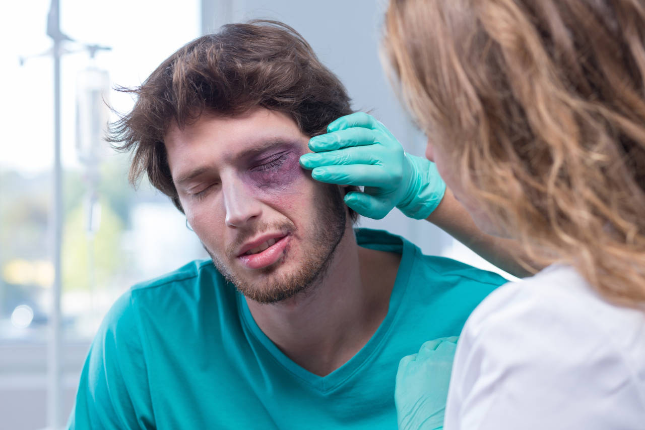 7 Common Eye Injuries and How to Treat Them