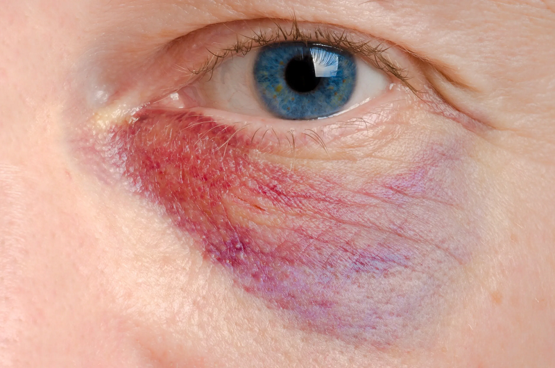 Ten Ways to Prevent Eye Injuries at Work
